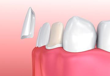 Closeup of natural repaired teeth