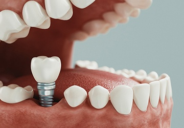 Model of implant-supported dental crown
