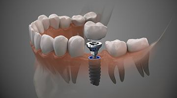 Dental crown restoration on tabletop