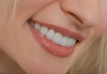Closeup of healthy flawless smile