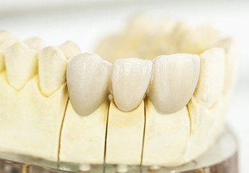 Melbourne Restorative Dentistry model smile with fixed bridge